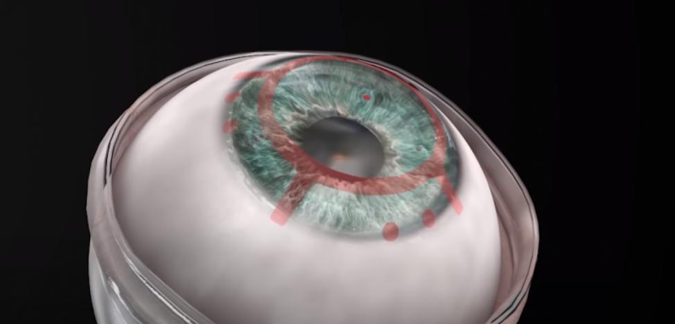 An artificial cornea helped a blind man regain his sight