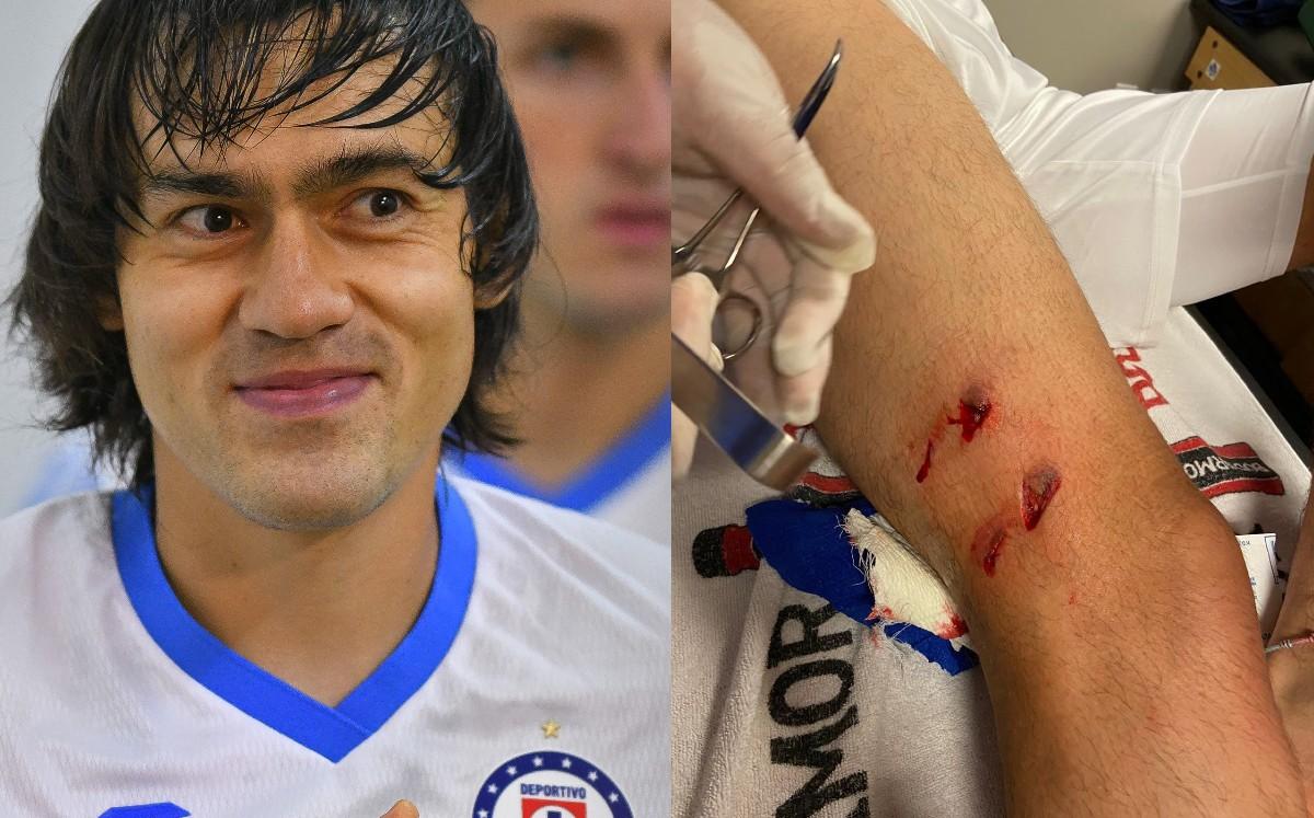 Blue Cross.  Shaggy Martinez undergoes a tough cut in a friendly fight